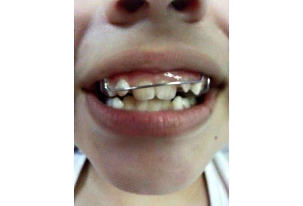 Pacientes pediátricos reciben aparatos dentales