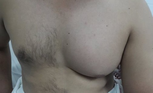 Con éxito intervienen cáncer de mama masculino