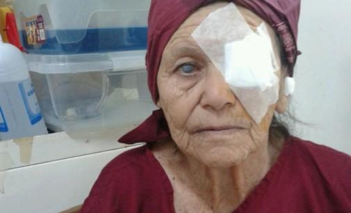 Superan meta de cirugías de catarata en Concepción