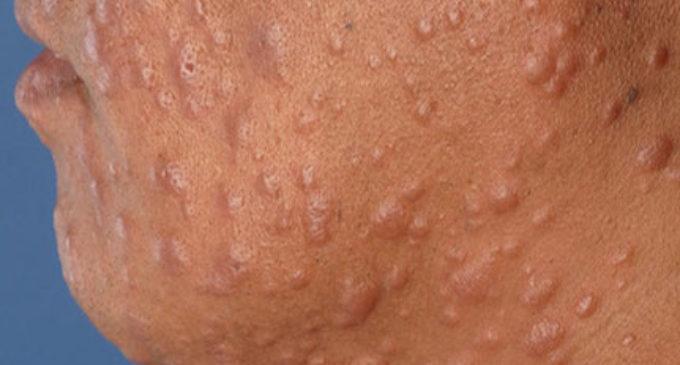 Instan a la ciudadanía a realizarse control de manchas en la piel ante 400 nuevos casos de lepra