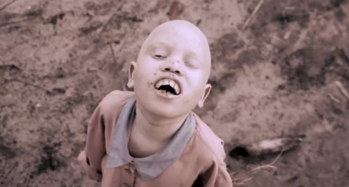 ¿Por qué los albinos de África son acechados por brujos y traficantes?