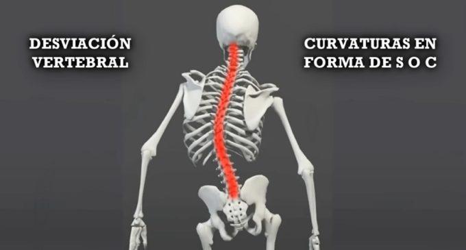 ¡Enderézate! Cuida tu columna vertebral!