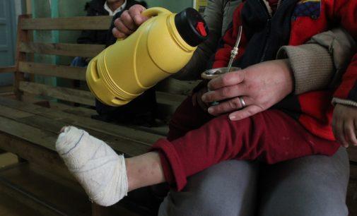 Con el frío casos de quemaduras aumentan: piden extremar cuidados con los niños