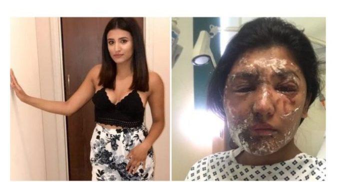 """""""Hoy me puse de pie y caminé por primera vez sin ayuda"""": el diario de Resham Khan, víctima de un ataque con ácido en Londres"""