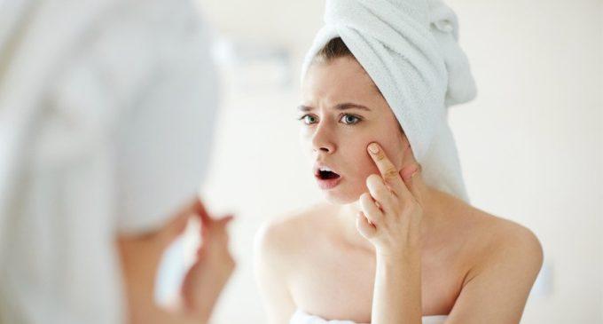 7 remedios para combatir el acné en poco tiempo