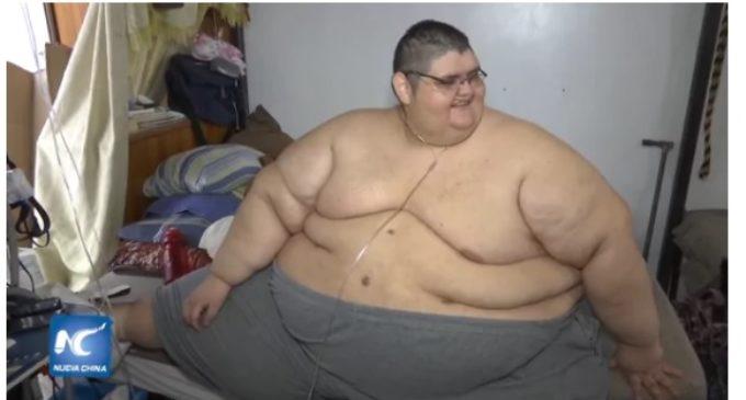 """El hombre """"más gordo del mundo"""" ya bajó 218 kilos y ahora sueña con poder caminar"""