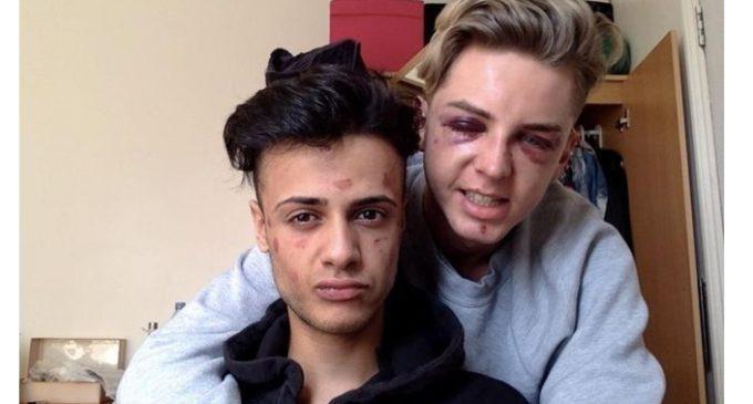"""""""Casi me dejaron ciego por escoger a la persona que amo"""": el dramático relato de parejas gay brutalmente atacadas"""