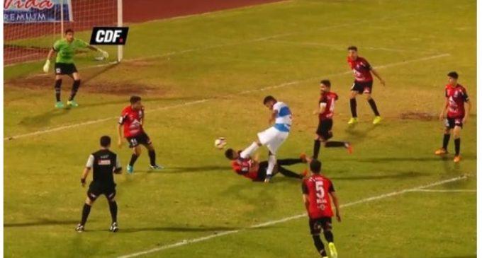Terrible patada en el fútbol chileno: traumatismo de cráneo y diversas fracturas faciales