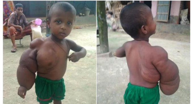 Niña de dos años apenas puede caminar o estar parada por un tumor en el brazo