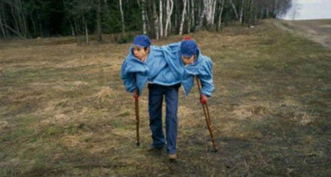 La terrible vida de las gemelas siamesas que la Unión Soviética utilizó como conejillo de indias