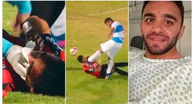 Las terribles secuelas de una escalofriante patada en el fútbol chileno