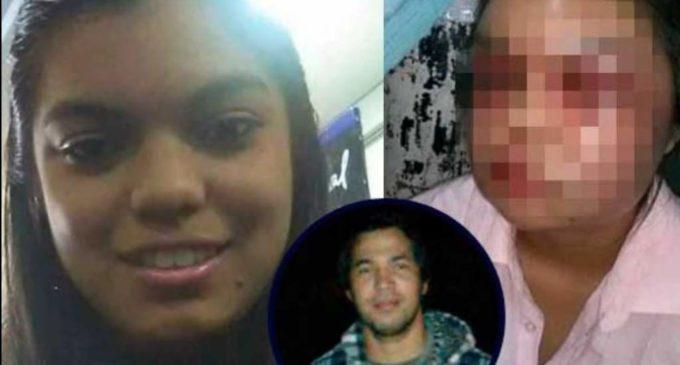 Joven brutalmente golpeada por su novio quiere dar un mensaje a las mujeres paraguayas