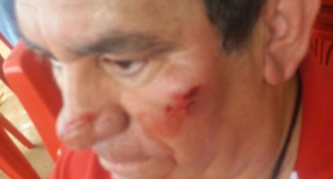 Sospechan intento de atentado contra candidato a gobernador