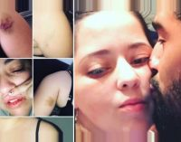 Acusan que ex-pareja de Burgos cometió autoflagelación