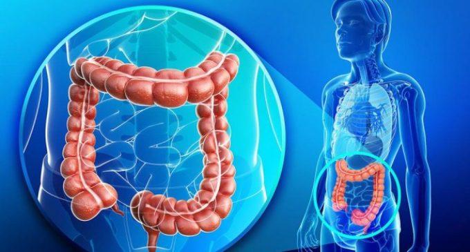 Salud insta a controles preventivos ante aumento de casos de cáncer de colon y recto