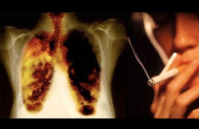 Hoy se recuerda el Día Mundial sin Tabaco