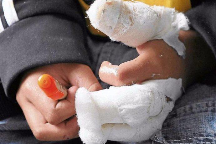 Fiscalía imputará a padres de menores afectados por fuegos artificiales