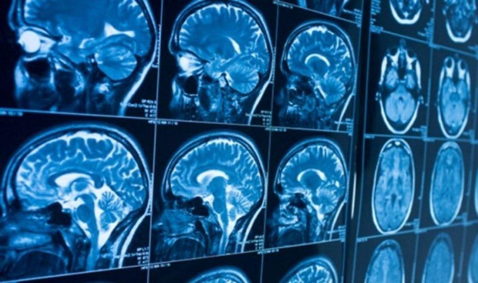 Nuevo estudio detecta secuelas cognitivas a largo plazo en personas que tuvieron coronavirus